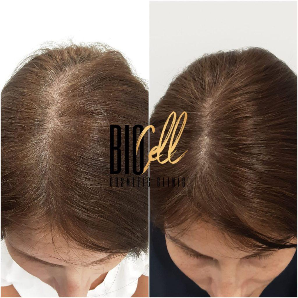 Female hair loss Sydney