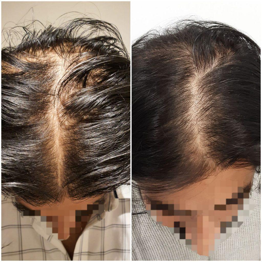PRP Hair Loss Sydney
