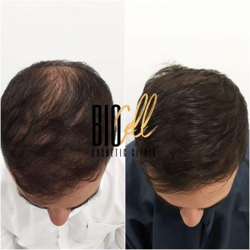 Sydney hair regrowth
