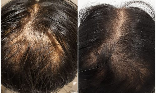 Sydney hair treatment