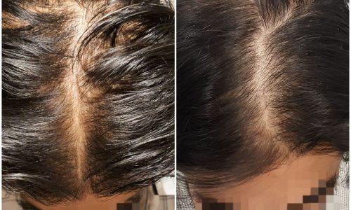Male Hair Loss in Sydney